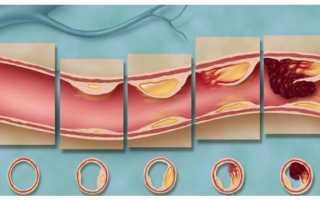 Все стадии, степени развития атеросклероза сосудов
