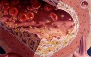 Низкий холестерин в крови у мужчин: причины, что делать