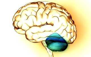 Инсульт мозжечка головного мозга – лечение и последствия