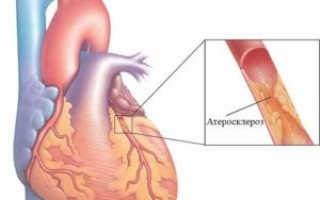 Атеросклероз коронарных артерий – что это, симптомы и лечение