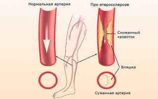 Как получить инвалидность при атеросклерозе сосудов нижних конечностей