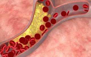 Хороший и плохой холестерин – что это такое, нормы анализа