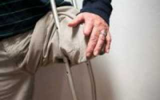 Сколько живут после ампутации ноги при сахарном диабете