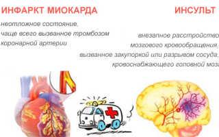 Чем отличается инфаркт миокарда от инсульта головного мозга