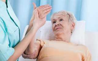 Отечность конечностей после инсульта – что делать