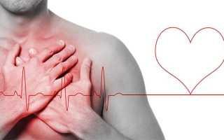Какое давление при инфаркте миокарда у женщин и мужчин?