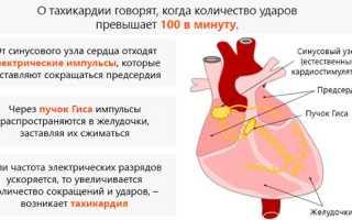 Учащенное сердцебиение при повышенном давлении что делать