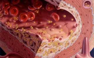 Как растворить и избавиться от холестериновых бляшек в сосудах?