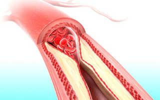 Анализ крови на холестерин: как подготовиться, нормы
