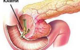 Камни в поджелудочной железе: симптомы, лечение