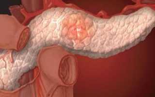 Инсулинома поджелудочной железы: симптомы и лечение