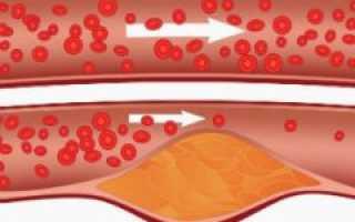 Холестерин 8,0 – 8,9 что делать, как лечить?