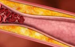 Холестерин 12 – что это значит, что делать, можно ли умереть