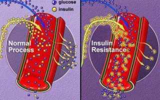Диабетическая микроангиопатия при сахарном диабете