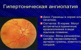 Гипертоническая ангиопатия сетчатки глаза: причины, лечение
