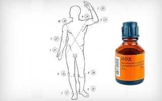 Индийский метод лечения гипертонии йодом – схема, как наносить