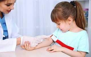 Холестерин у детей – норма, причины повышения, что делать