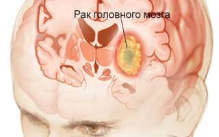 Как распознать опухоль головного мозга, симптомы заболевания