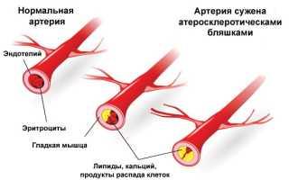 Атеросклероз сосудов полового члена – причины, симптомы и лечение