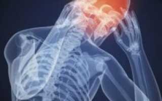 Внутричерепное давление (ВЧД): симптомы и лечение у взрослых