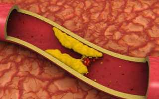Повышенный холестерин в крови – причины, что делать и как лечить