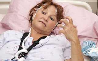 Судороги после инсульта: что делать, какую опасность представляют