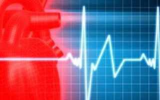Стенокардия: причины, симптомы, особенности лечения