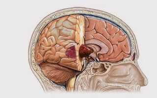 Глиобластома головного мозга: симптомы, видео операции, прогноз выживаемости