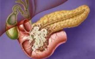 Рак головки поджелудочной железы: сколько с этим живут, симптомы и стадии
