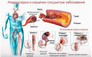 Атеросклероз – последствия и осложнения заболевания