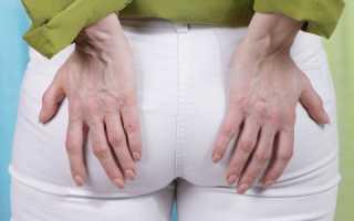 Геморрой у женщин: причины, симптомы, лечение