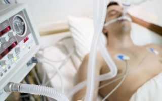 Кома после инсульта: сколько дней продолжается, шансы выжить