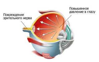 Как снизить внутриглазное давление в домашних условиях