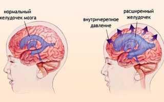 Гипертензионный синдром у детей, взрослых: причины, лечение