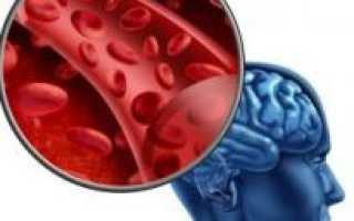 Цереброваскулярная болезнь (ЦВБ, ЦВЗ): причины, симптомы и лечение